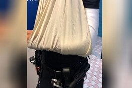Rotterdamse agent breekt arm bij arrestatie